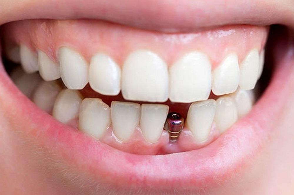 Despre implanturile dentare de la A la Z, pe înțelesul tuturor